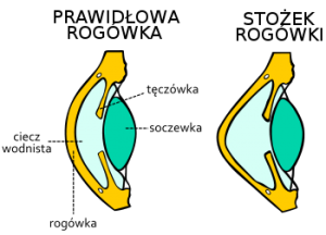 Stożek rogówki
